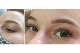 2020-09-21-lifting-rzes-koloryzacja-botox-salon-kosmetyki-estetycznej-azprestige-pl