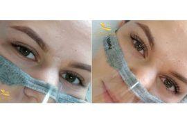 lifting-rzes-koloryzacja-botox-salon-kosmetyki-estetycznej-azprestige-pl